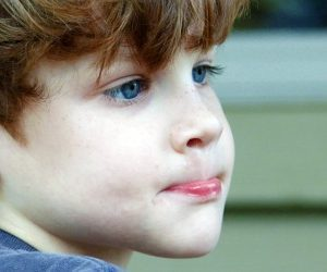 boy with runny nose