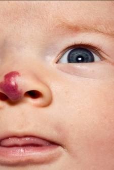 Kora's nose
