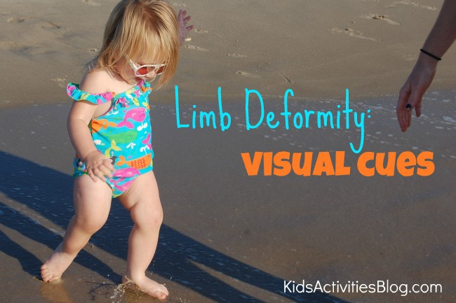 limb deformity visual cues