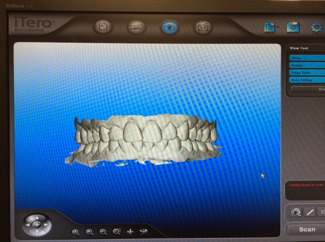 iTero Scan for Invisalign