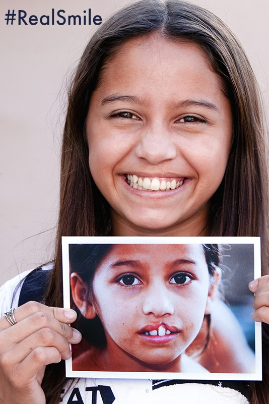 RealSmile for Operation Smile Donation