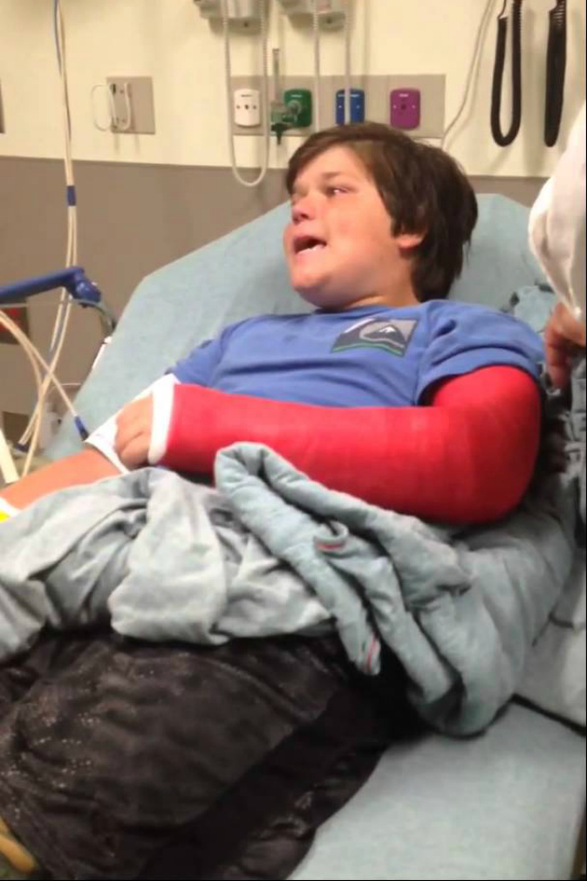broke arm