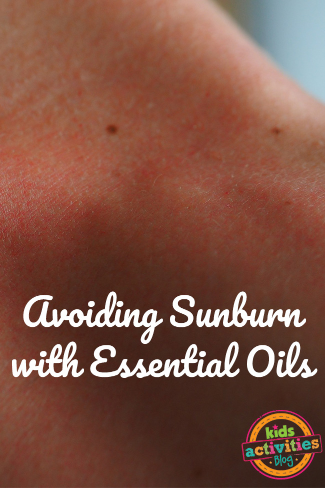 Avoiding Sunburn with Essential Oils