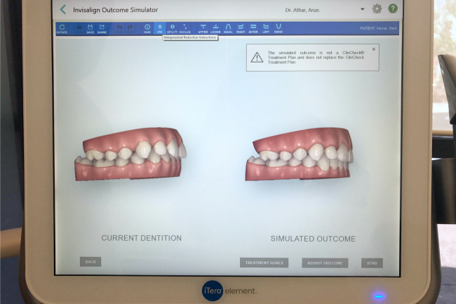 Can a 14 y/o REALLY handle Invisalign Clear Aligners?