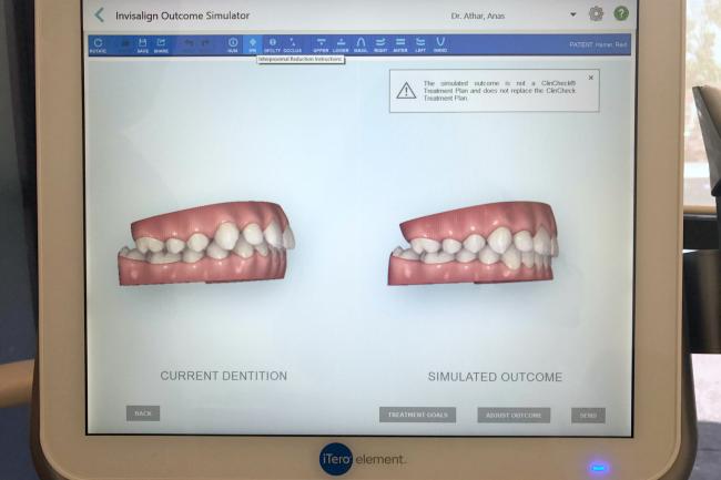 Reid bite iTero scan for Invisalign