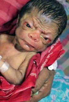 Baby Born With Progeria Has The Face Of An 80-Year-Old Man!